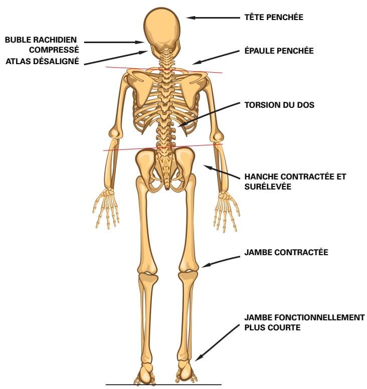 douleurs benines de la hanche