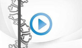 video_kiro_Chiropractic_Scoliosis_H