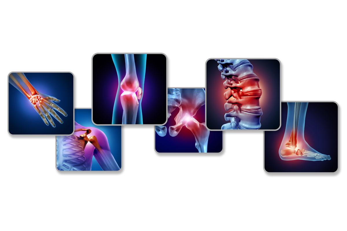 MonChiro douleurs chroniques solutions naturelles chiropratique princ